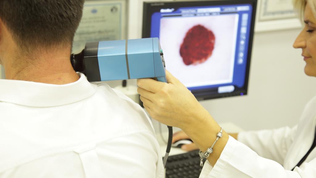 dermoskopija-dijagnostika-poliklinika-diva