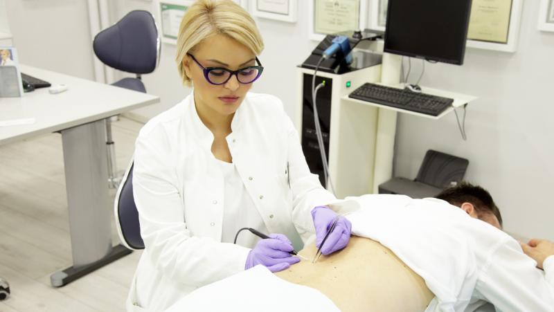 uklanjanje-mladeza-radiotalasima-dijagnostika-poliklinika-diva
