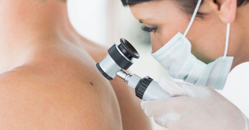 mladezi-bradavice-hijaluron-mezoterapija-diva-uklanjanje-mladez-dermoskopija