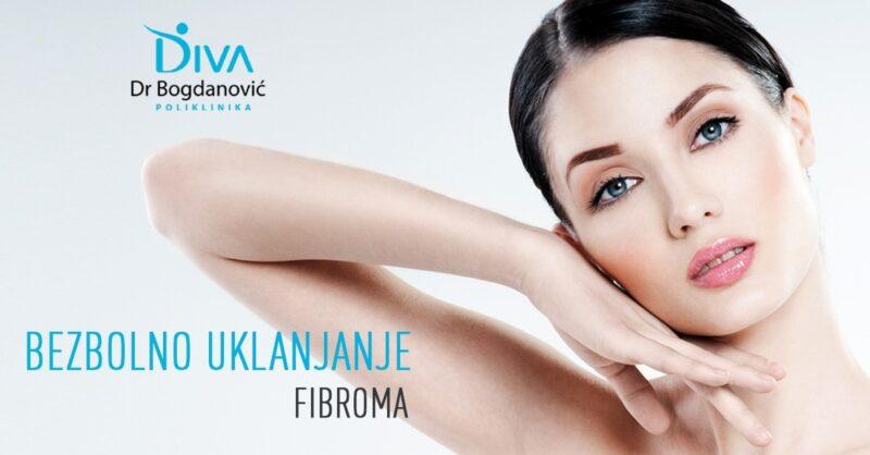 uklanjanje-fibroma-radiotalasnom-metodom-poliklinika-diva-dr-bogdanovic-dermatoloska-ordinacija